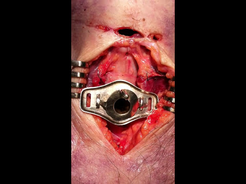 Tracheotomy part 5/5
