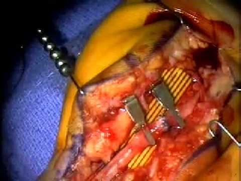 ulnar artery repair pt 3 of 3 (Warning Graphic surgery)