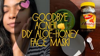 ALOE VERA FACE MASK | DIY ALOE HONEY MASK FOR OILY AND ACNE PRONE SKIN | 100% WORKS