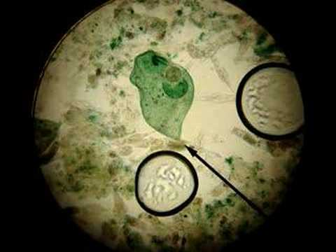 Protista - Stentor in Rotifer...