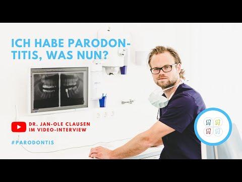Welche Parodontitis Behandlungsmethoden Gibt Es?