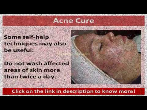 See now  natures cure acne