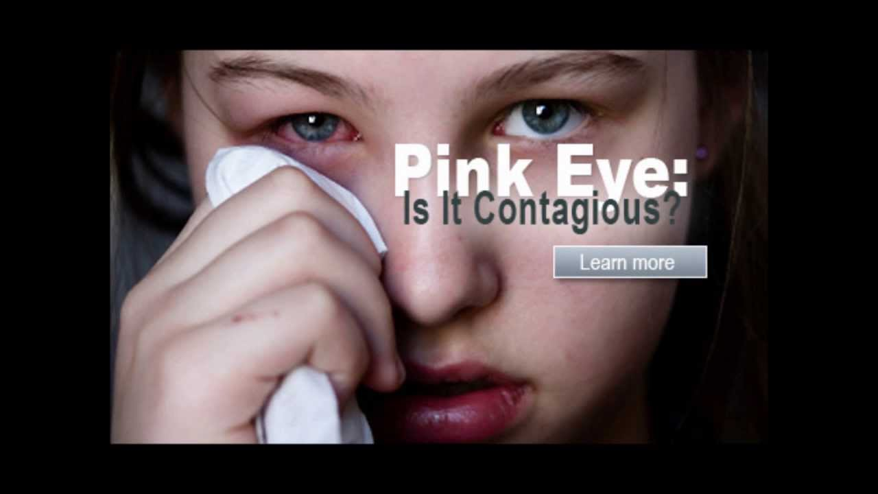 How to get rid of pink eye conjunctivitis treatment how to get rid