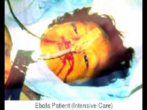 ebola vires dangers vires