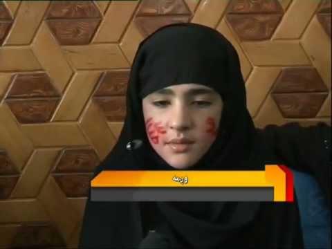 Kabul girl miracle, Allah and Muhammad names on face, Wagma