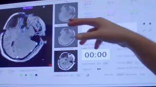 Θεραπεία της επιληψίας με laser και στην Ευρώπη