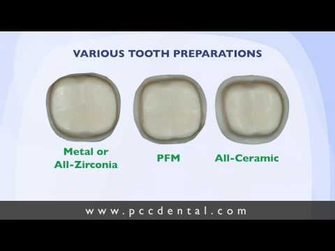 Ask Gordon: Crown tooth preparation technique