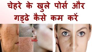 Get rid of open pores on face, चेहरे के खुले पोर्स और गड्ढे कैसे कम करें