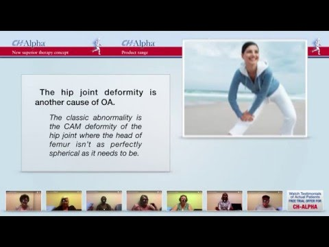 Joint Supplement CH Alpha   Hip Joint Pain And Osteoarthritis  Treatment Principles & Latest Options