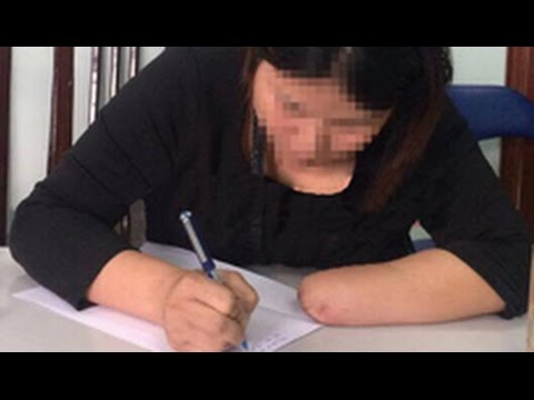 Vietnam woman 'cuts off limbs for insurance payout'