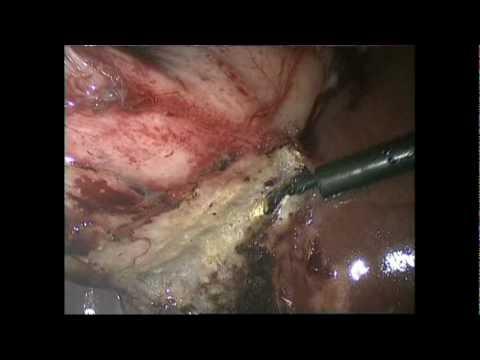 Laparoscopic Cholecystectomy For Acute Cholecystitis
