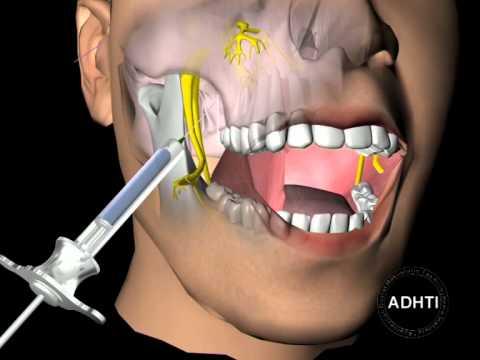 инфильтрационная анестезия верхней челюсти...infiltration anesthesia of the upper jaw