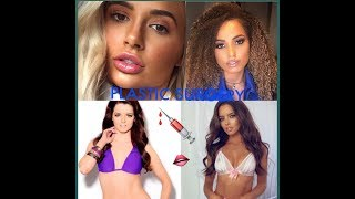 LOVE ISLANDERS PLASTIC SURGERIES | MOLLY-MAE, MAURA, AMBER, MEGAN, OLIVIA, AND MORE...