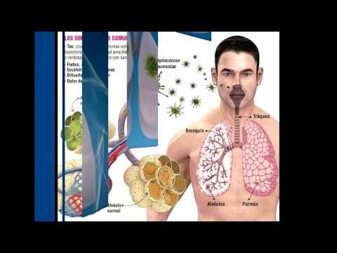 Neumonía Pulmonar
