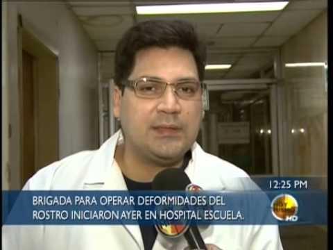 TVC Hoy Mismo-Realizan cirugías plásticas faciales gratuitas en el  Hospital Escuela
