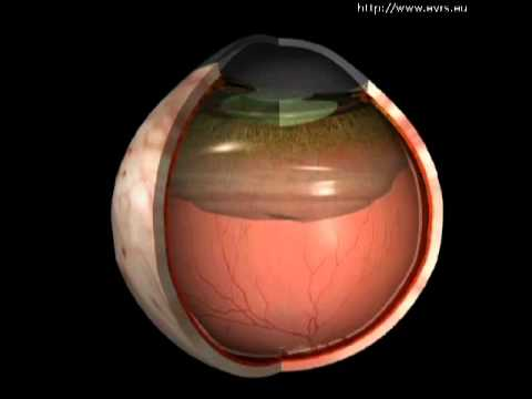 Images Posterior Vitreous Detachment Posterior-vitreous-detachment