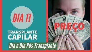 Qual é o preço? - Dia 11 - Pós Transplante Capilar