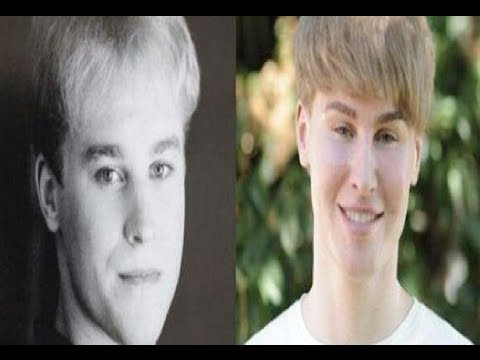 Plastic Surgery Fail Man Wants To Look Like Justin Bieber @hodgetwins