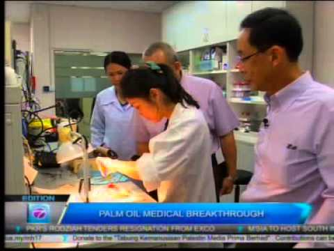Palm Oil Medical Breakthrough for Stroke Patients