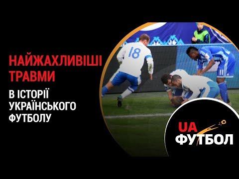Найжахливіші ТРАВМИ в історії українського футболу