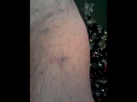 Video 4, Tattoo Removal, E-raze, Rejuvi, Non lazer, Reading Berkshire, Scar Tissue Pictures
