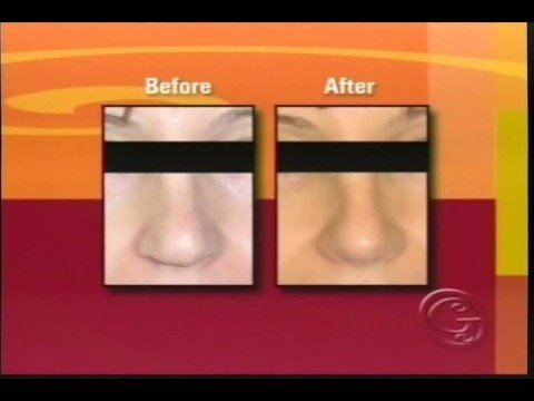 &quot;Your Beautiful New Nose&quot;: Rhinoplasty by Dr. Jason Leedy