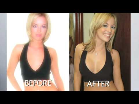 C Cup Vs D Cup Comparison Breast Implants Procedure By