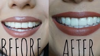 HOW TO WHITEN YOUR TEETH AT HOME | GIVEAWAY SMILE BRILLIANT [CLOSED]