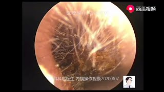 Happy new year 2020-Remove cerumen embolism from external auditory canal, 10 minutes