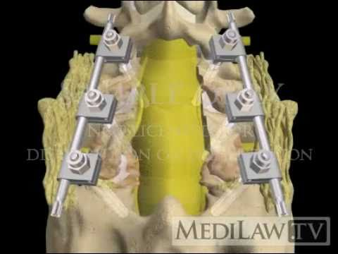 Lumbar Spine Pedicle Screw Fixation Fusion lawyer 3D animations