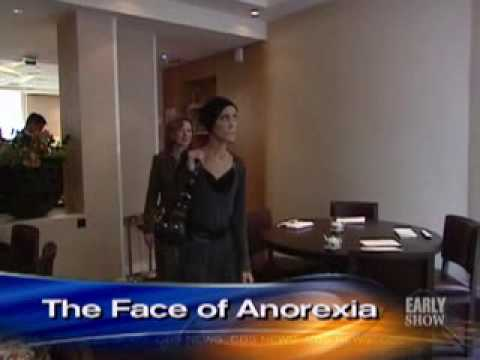 Anorexia s Living Face (CBS News)