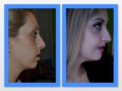 5 Weeks post op Double Jaw Surgery and Genioplasty