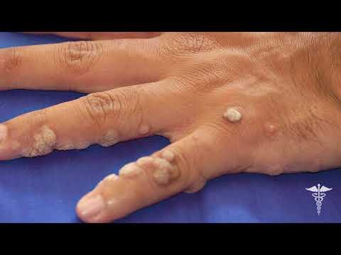 Почему появляются бородавки на руках и пальцах рук?