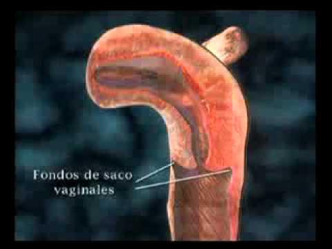 Anatomía femenina thumbnail