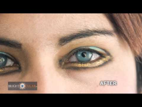 Light Blue Permanent Eye Color Change Cosmetic Intraocular Lens Surgery. video
