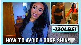 I LOST OVER 100 LBS WITH NO LOOSE SKIN | How I Avoided Loose Skin After Weight Loss | Rosa Charice
