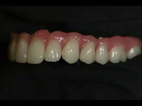 Hybrid Implant Dentures
