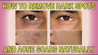 How to Remove Dark Spots and Acne Scars Naturally