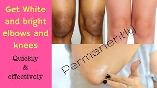 Get rid of dark elbows and knees | at home | lighten dark elbows and knees quickly |