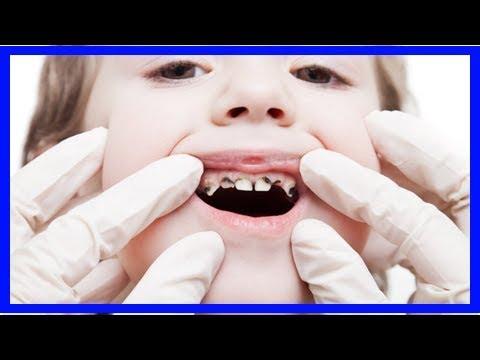 Seltene Zahnarztbesuche führen zu deutlich mehr Entfernungen von Zähnen bei Kindern