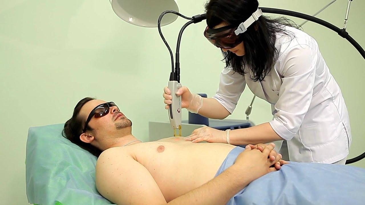 лазерная эпиляция александрит