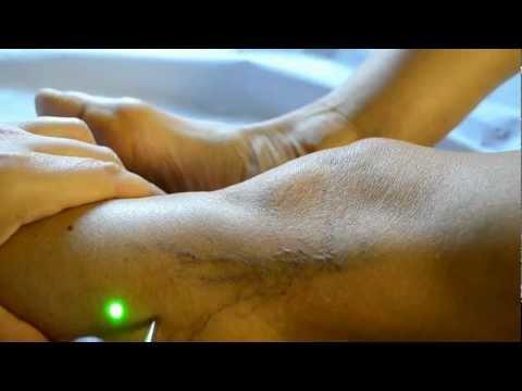 Trattamento laser capillari gambe