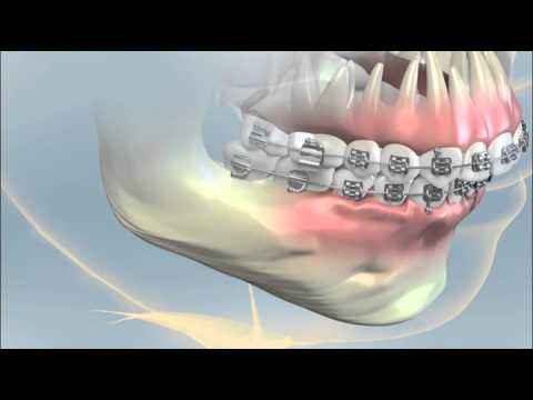 Having Orthognathic Surgery For A Severe Overbite