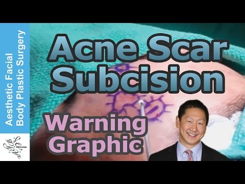 Acne Scar Revision Subcision by Dr Philip Young MD from Bellevue Washington