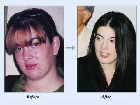 nodular acne - must see