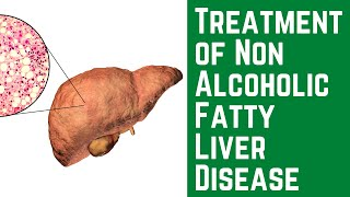 Treatment of Non Alcoholic Fatty Liver Disease #nafld