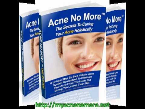 Body Acne Treatment Body Acne Treatment With Acne No More Exposed