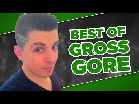 Best Of Gross Gore - Banned but Never Forgotten   League Of Legends