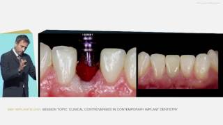 The Role of Prosthodontics in Preservation of Soft and Hard Tissue around Implants