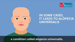 Alopecia Areata – know why your hair falls out.